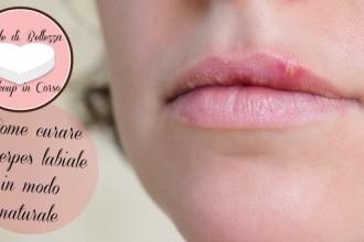 Come curare l'herpes labiale in modo naturale