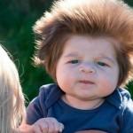 Il bambino con i capelli più folti del mondo – FOTOGALLERY
